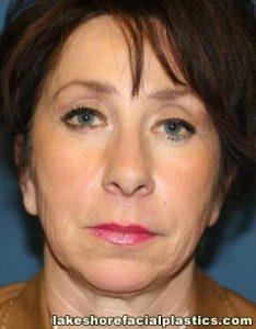 face lift surgery rhytidectomy